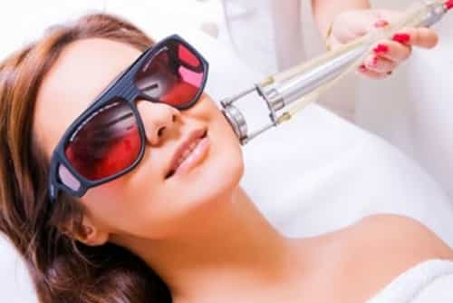 Yüze hangi lazer uygulanmalı, yüz için lazer epilasyona gidenler